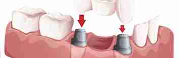 Dental Treatment: Bridging