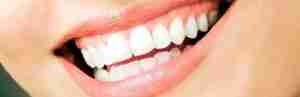 Dental Treatment: Invisalign