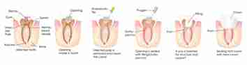Dental Treatment: Root Canal Treatment