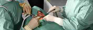 Dental Treatment: Wisdom Tooth Surgery